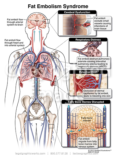 Fat Embolism Syndrome Legal Graphicworks